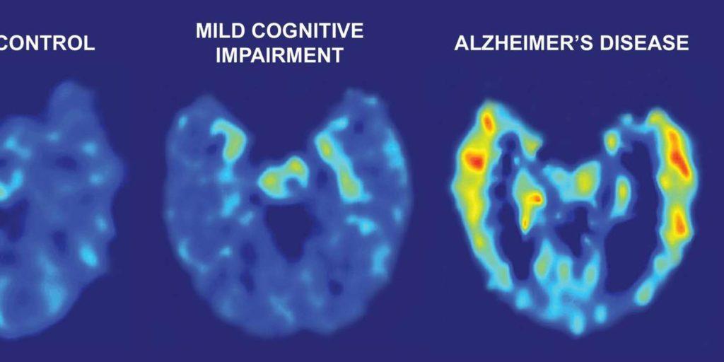Des chercheurs ont découvert un traitement contre l'hypertension qui ralentit la maladie d'Alzheimer